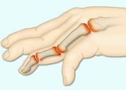 Cách điều trị bệnh viêm đa khớp