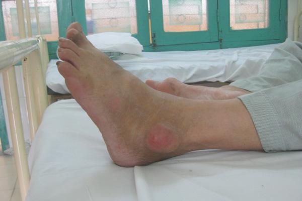 Bệnh thống phong là gì và các triệu chứng cơ bản của bệnh