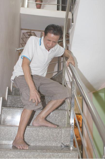 bệnh viêm quanh khớp gối làm bệnh nhân cảm thấy đau nhức