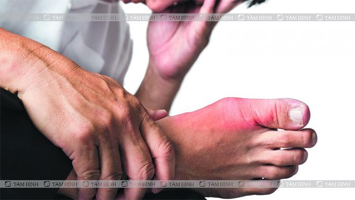 Cơn đau xuất hiện đột ngột vào ban đêm thường ở khớp ngón chân cái