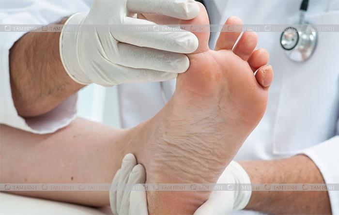 Bác sĩ khám lâm sàng, xét nghiệm nồng độ axit uric để kiểm tra bệnh