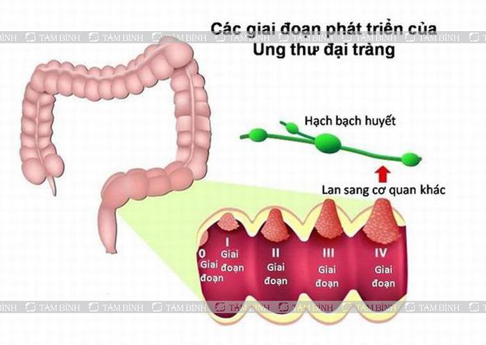 Các giai đoạn của ung thư đại tràng