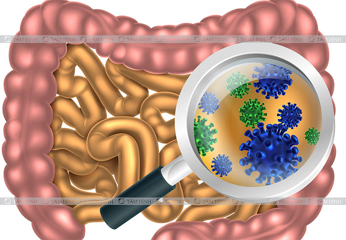 Rối loạn vi sinh đường ruột cũng có thể gây nên ỉa chảy