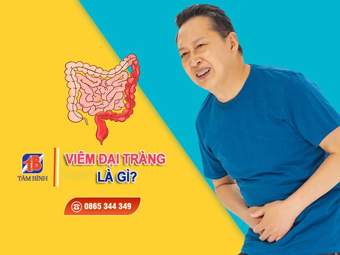 Viêm đại tràng thuộc nhóm bệnh lý về đường tiêu hoá phổ biến ở nước ta