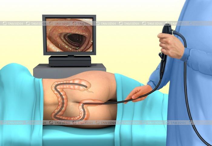 quy trình nội soi đại tràng qua hậu môn
