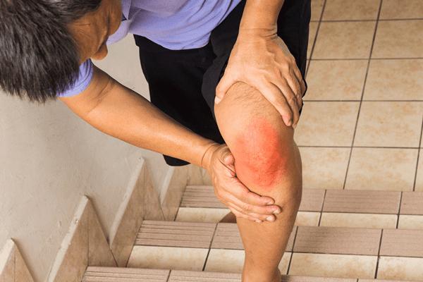 Đau đầu gối khi lên xuống cầu thang không chỉ gây bất tiện trong sinh hoạt mà còn ảnh hưởng đến sức khỏe.