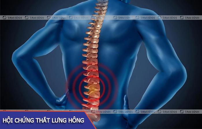 Hội chứng đau thắt lưng hông là bệnh lý liên quan tới các rễ thần kinh