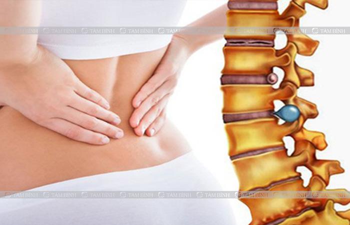 Áp lực khi đĩa đệm thoát vị sẽ gây kích thích và viêm nhiễm rễ thần kinh