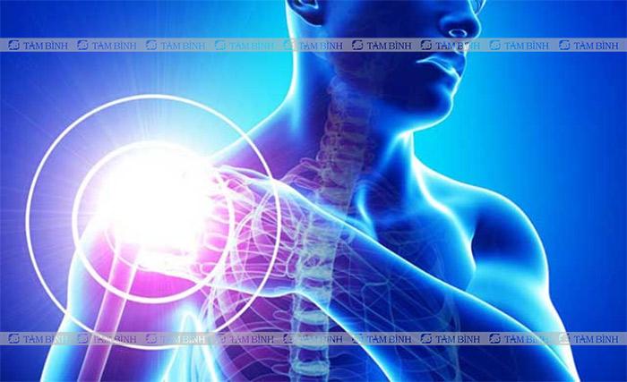 Bệnh xương khớp là nguyên nhân hàng đầu gây đau dây thần kinh cánh tay