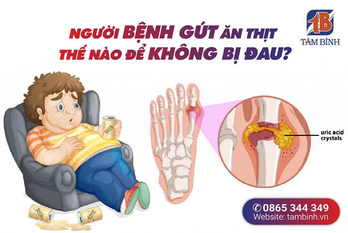 Bệnh gout ăn thịt thế nào