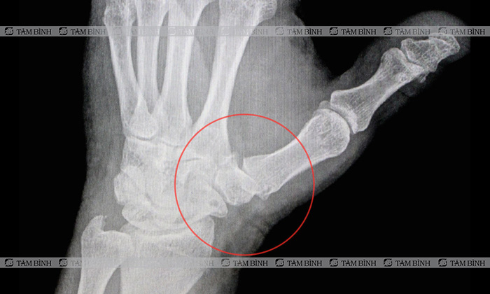 Chụp X-quang