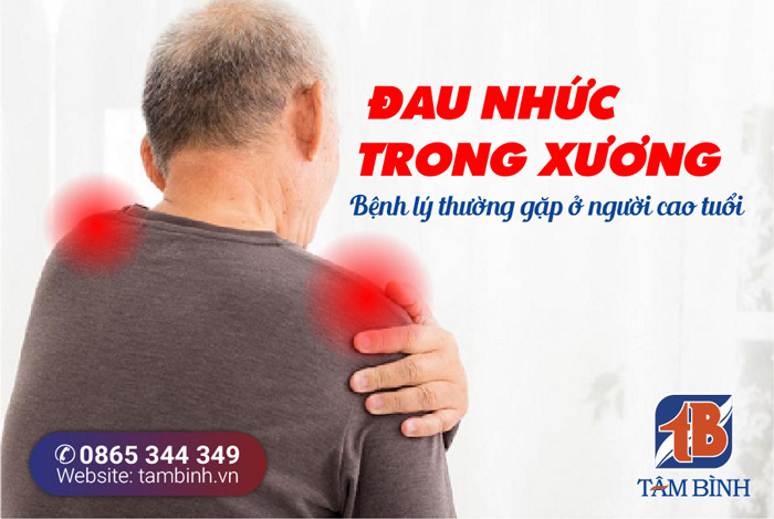 cảm giác đau nhức trong xương là chứng bệnh gì? tham khảo ngay!