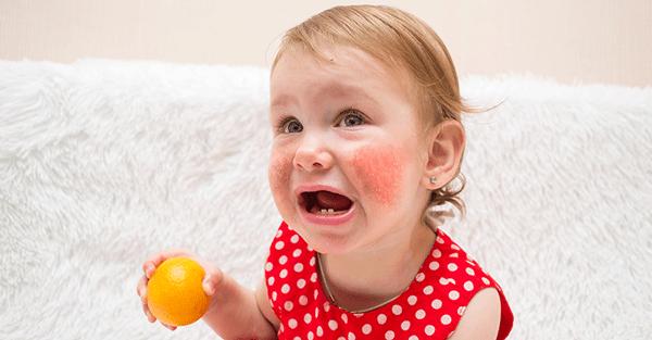 Trẻ bị dị ứng thức ăn xảy ra phổ biến hơn so với người lớn