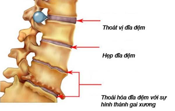Thoái hóa đốt sống lưng gây ra những cơn đau âm ỉ