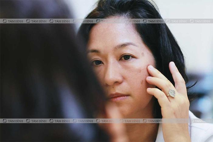Có thể dùng bạch truật trị nám da