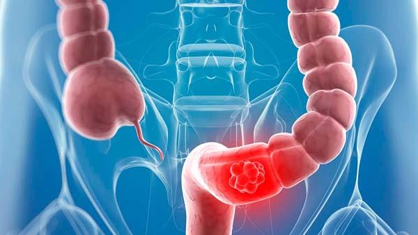 Viêm đại tràng có thể do nhiễm khuẩn đường ruột Salmonella, Shigella hoặc do lỵ amip