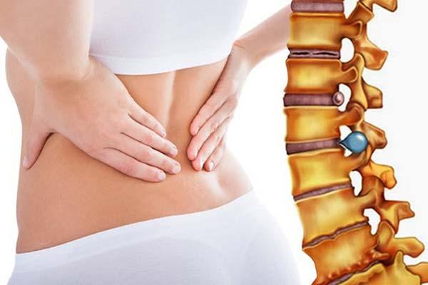 Đau cột sống thắt lưng - bệnh khó tránh ở phụ nữ.