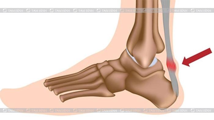 Viêm gân Achilles là một trong những nguyên nhân gây đau gót bàn chân