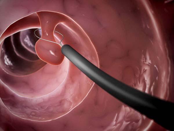 Cắt polyp đại tràng bằng bụng cụ y khoa luồn qua ống nội soi đại tràng