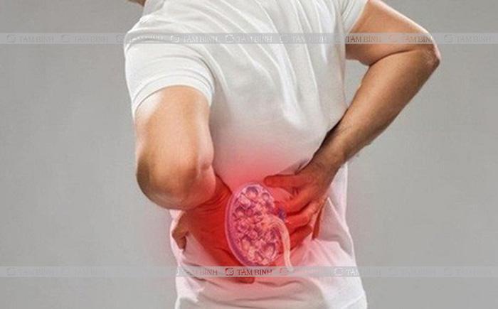 nguyên nhân dẫn tới đau lưng ở nam giới