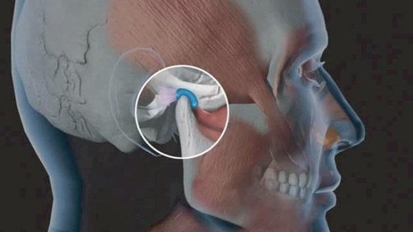 Chẩn đoán đau quai hàm