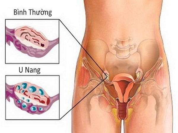 Đau bụng dưới rốn do u nang buồng trứng