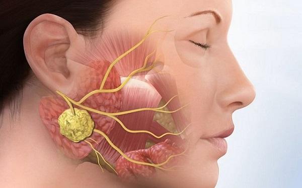 Nguyên nhân gây đau quai hàm