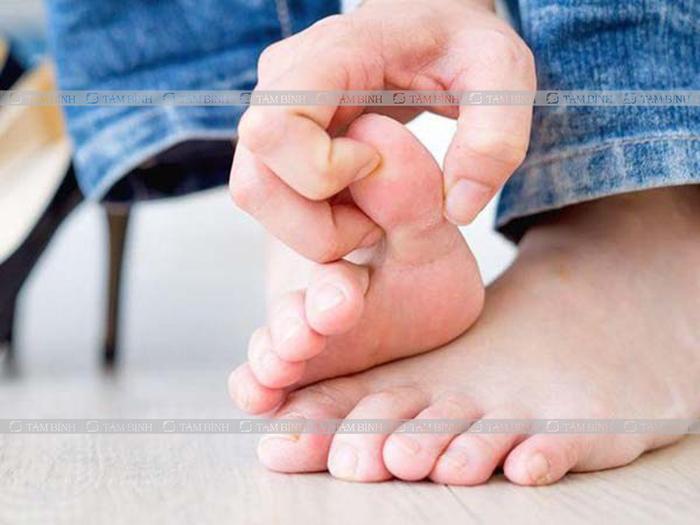 Allopurinol dùng trong điều trị gout