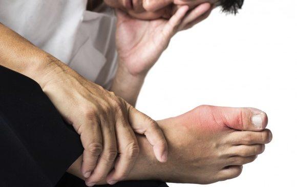 có khoảng 3% người trưởng thành mắc bệnh gút