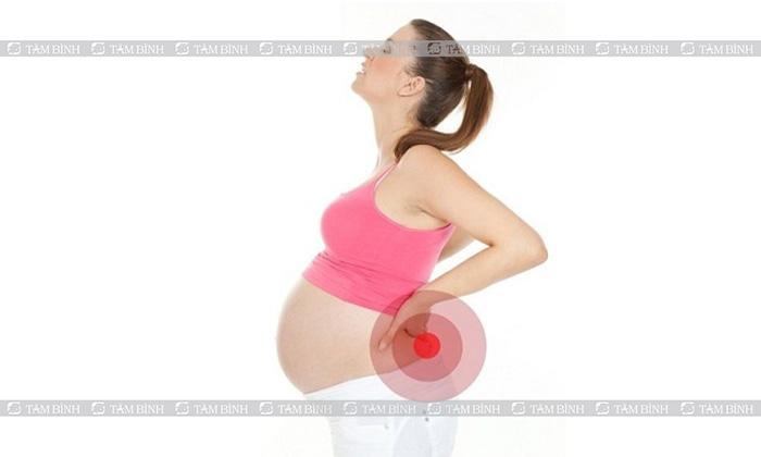 Đau lưng ở nữ giới khi mang thai