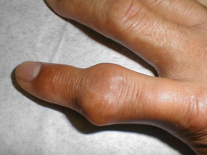 Bệnh gout (gút) có di truyền không