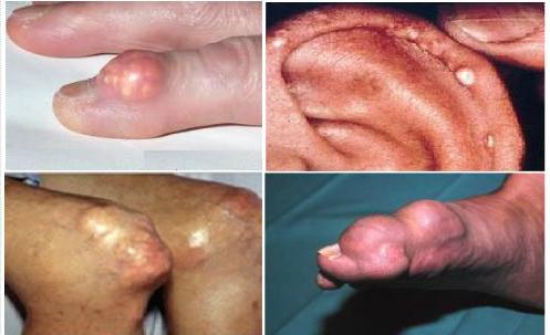 Hạt tophi thường xuất hiện xung quanh khớp, đầu gối, ngón chân cái, khớp bàn chân, khuỷu tay, bàn tay,…