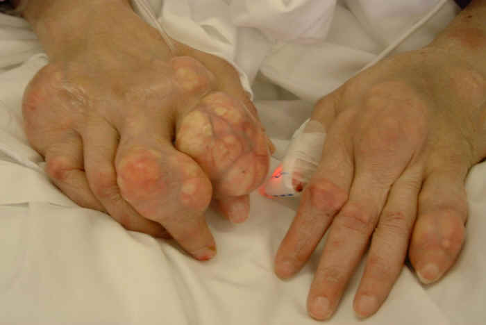 Hạt tophi là triệu chứng cảnh báo gout đã chuyển qua giai đoạn nặng