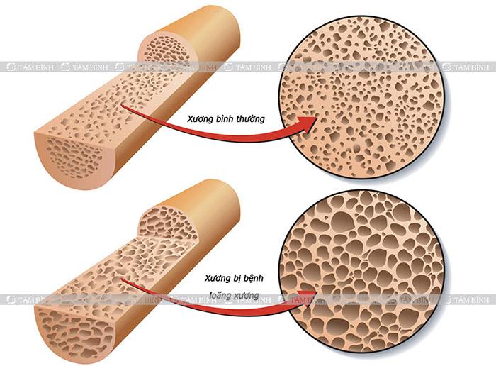 loãng xương gây đau lưng