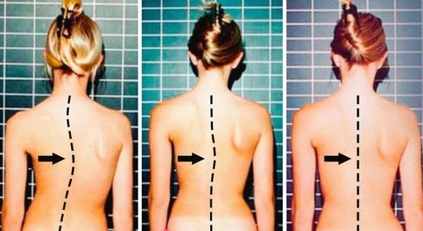 Tình trạng vẹo cột sống ở trẻ em đang ngày càng phổ biến