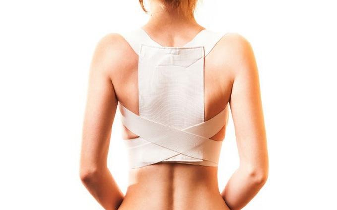 Nẹp cột sống là phương pháp thường sử dụng để chữa vẹo cột sống
