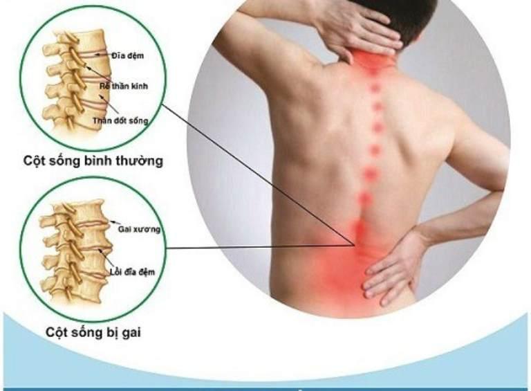 Biểu hiện của bệnh gai cột sống thắt lưng