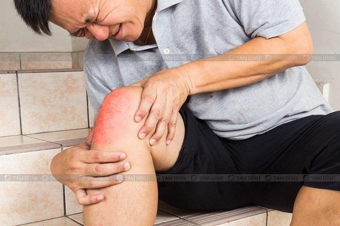 Tràn dịch khớp gối làm hạn chế khả năng cử động của người bệnh