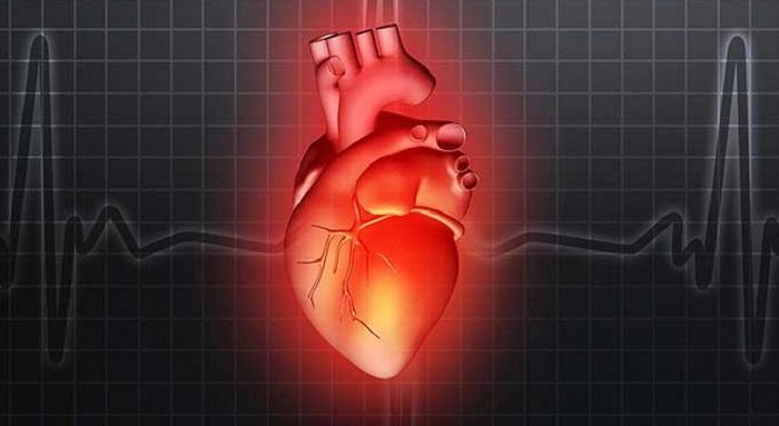 Nguyên nhân gây thấp khớp cấp có thể do bệnh lý về tim