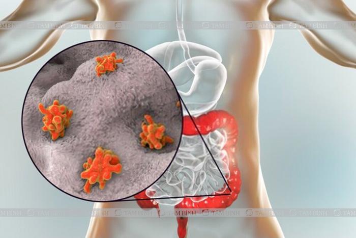 triệu chứng và biến chứng khi nhiễm trùng amip