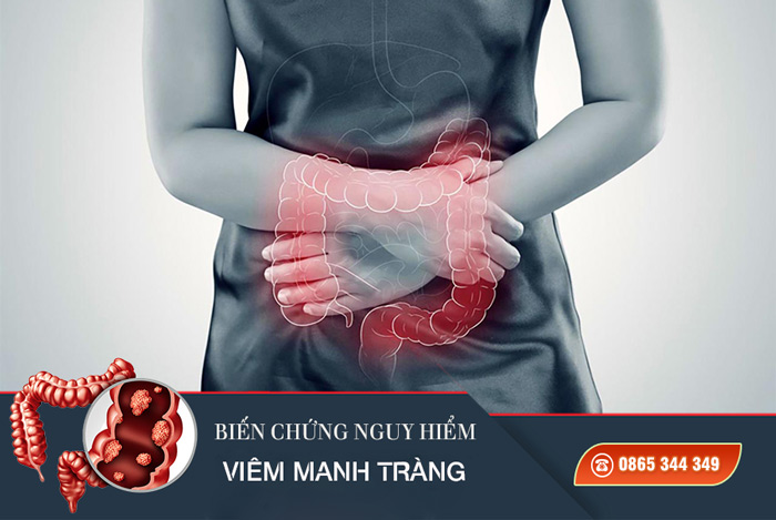 Biến chứng nguy hiểm của viêm loét manh tràng