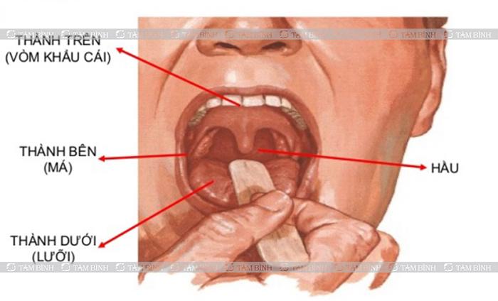 Miệng - Hệ tiêu hóa
