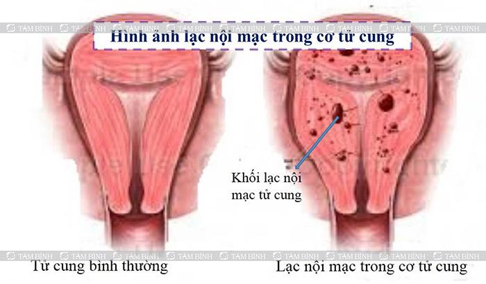 Lạc nội mạc tử cung gây đau bụng âm ỉ
