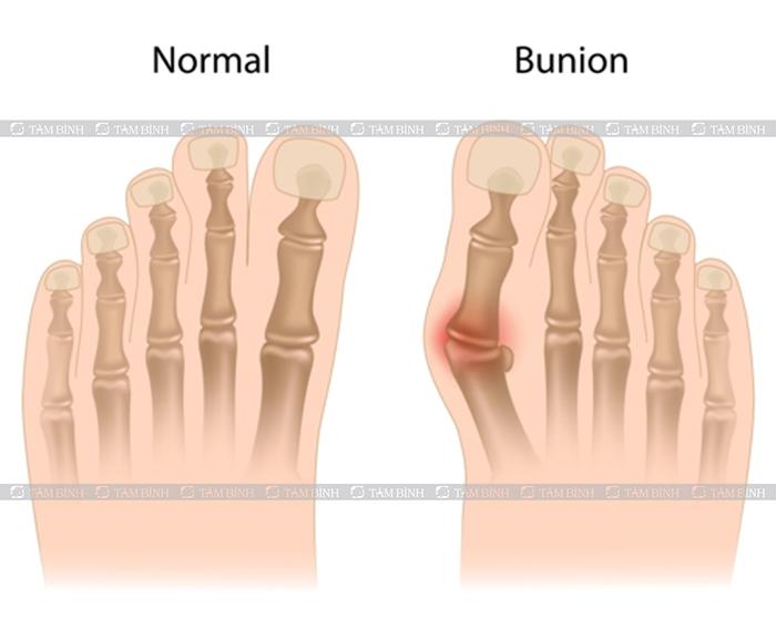 bệnh bunion