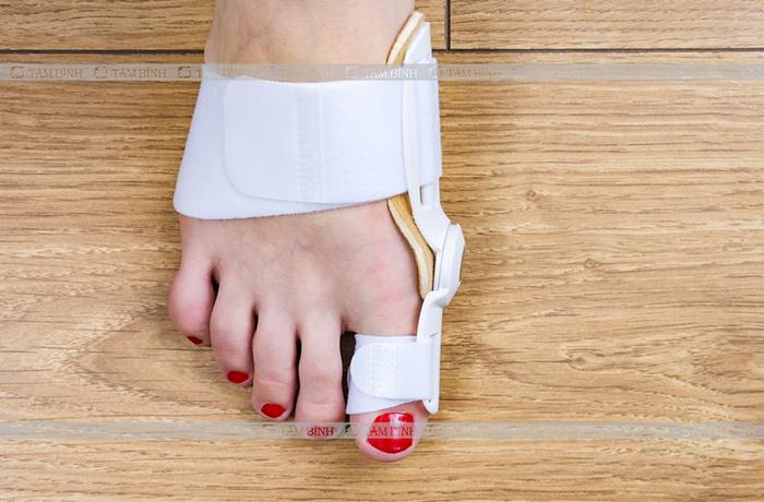 điều trị đau khớp ngón chân cái bằng nẹp cố định
