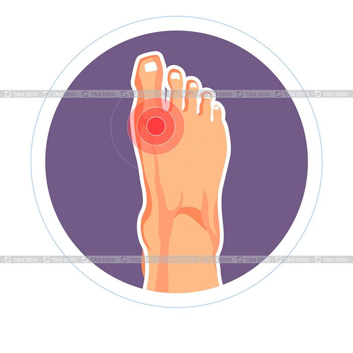 tình trạng đau khớp ngón chân cái