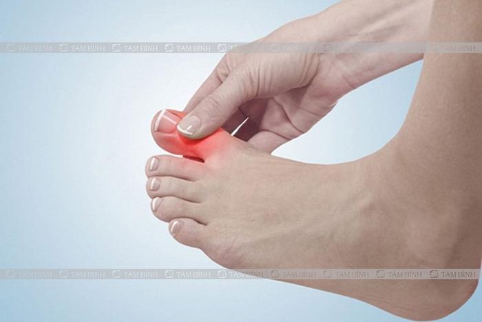 viêm khớp dạng thấp ngón chân cái