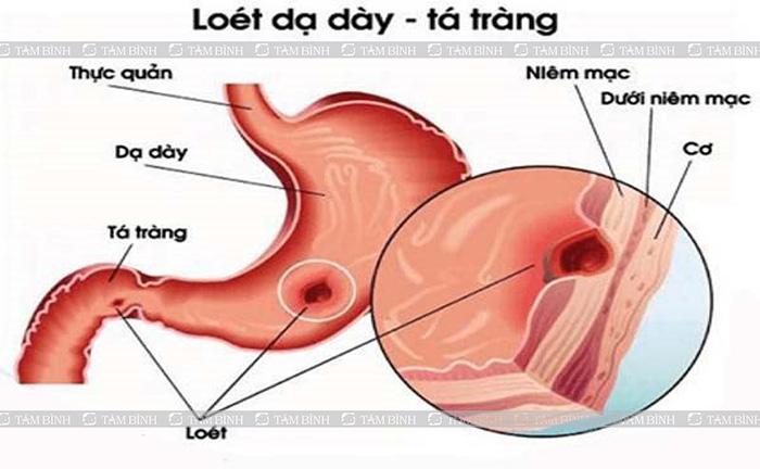 Viêm loét dạ dày - tá tràng