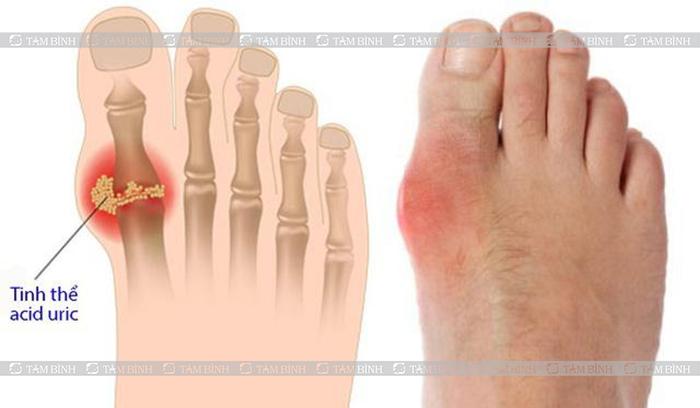 mật nhân chữa bệnh gout được không