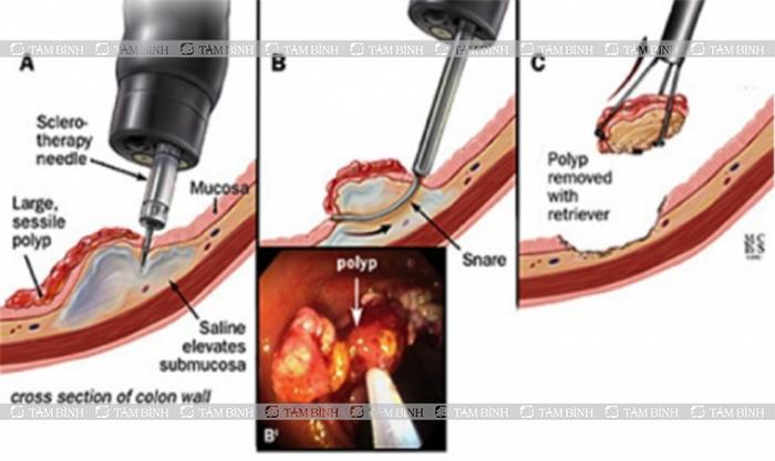 Phẫu thuật u đại tràng
